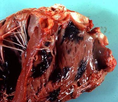 Melanosi maculosa nel cuore di vitello.