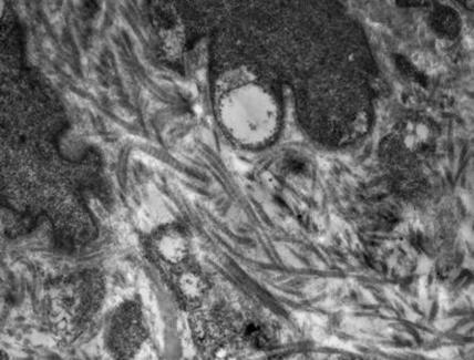 Disposizione irregolare delle fibre collagene con aspetti spiraliformi (T.E.M.)
