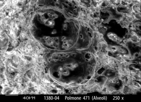 Alveoli ripieni di polveri (S.E.M.)