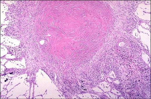 Nodulo silicotico nel polmone. Ben evidente la reazione fibrotica accerchiante. E.E.