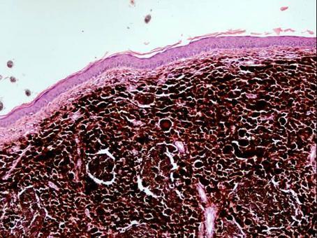 Melanocitoma – E.E.