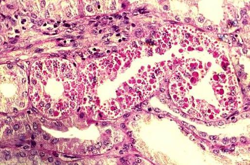 Degenerazione ialina renale – Accumulo nelle cellule di un materiale eosinofilo ed omogeneo – PAS. Foto tratta da P.S. Marcato