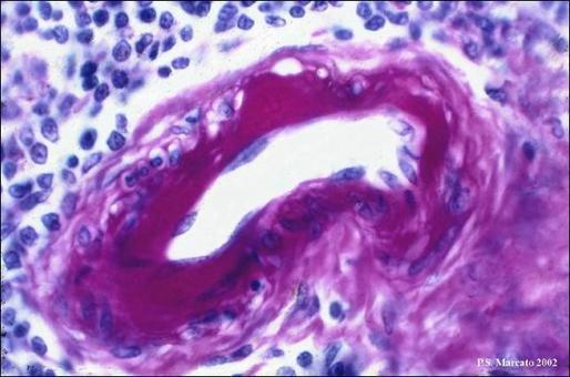 Ialinosi di un'arteriola splenica. PAS