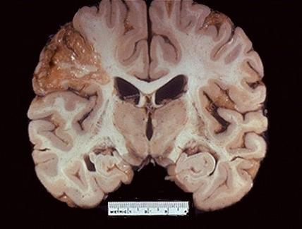 Cervello. Focolaio necrotico o Infarto cerebrale
