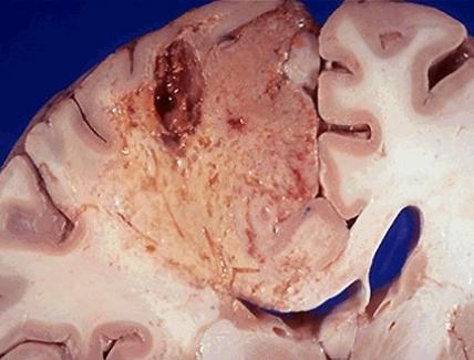 La zona di necrosi è scolorita, edematosa, rammollita (malacia)