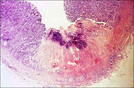 Abomaso. Focolaio di necrosi coagulativa esteso a tutta la mucosa. E.E. Foto tratta da P.S. Marcato