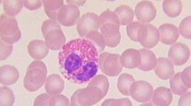 Granulocita eosinofilo