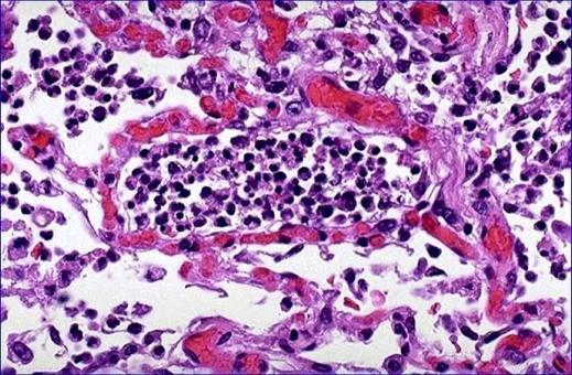 Flogosi acuta – Un alveolo ripieno di granulociti neutrofili. Intensa iperemia dei capillari settali