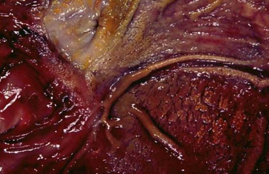 Gastrite emorragica e pseudomembranosa (difteroide). Foto tratta da P.S. Marcato