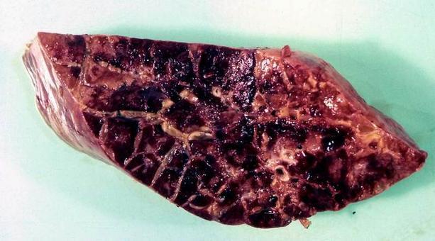 Polmonite fibrinosa – Marmorizzazione
