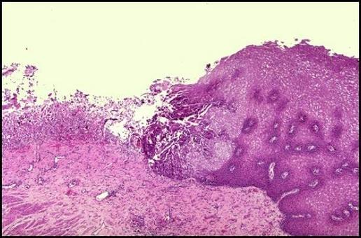 ULCERA: Accanto all'epitelio necrosato si evidenzia fibrina, un infiltrato granulocitario e tessuto di granulazione. Foto tratta da P.S. Marcato