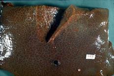 Fegato. Ben evidente l'ispessimento del tessuto connettivo perilobulare