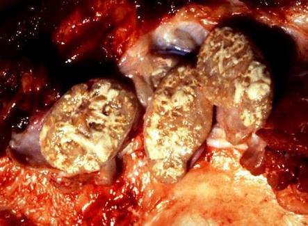 TBC suino. Aspetti di caseificazione con colliquazione nei linfonodi parotidei. Foto tratta da P.S. Marcato