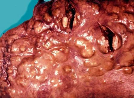 TBC equina. Lesioni nodulari-nodose con aspetto fibro-sarcomatoso. Foto tratta da P.S. Marcato