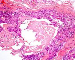 Cheratina circondata da granulociti  e macrofagi. E.E.