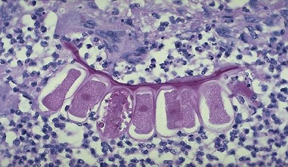 Granuloma da corpo estraneo nel polmone (inalazione di sostanze vegetali). E.E.