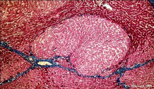 Iperplasia epatocellulare nodulare. E.E.