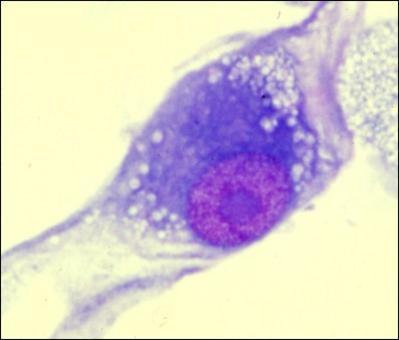 Quando la cellula neoplastica perde le caratteristiche morfo-funzionali proprie si dice anaplastica