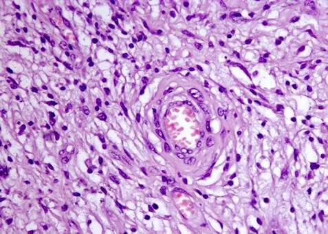 Le cellule possono atteggiarsi a formare vortici intorno ai vasi