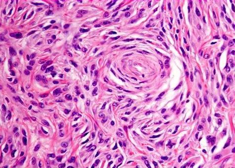 Le cellule hanno citoplasma pallido, poco definito, e nuclei ovoidali con nucleolo piccolo e centrale.