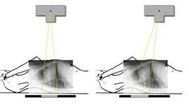 Deformazione dell'opacità cardiaca