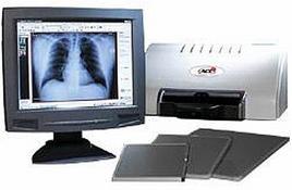 Un esempio di sistema CR costituita da cassette, computer e scanner