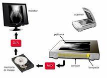 Digitalizzazione di una pellicola radiografica