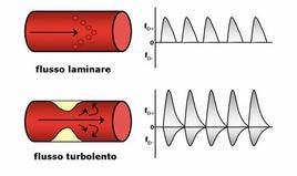Tipi di flusso sanguigno e relativo spettro Doppler
