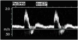Es. di spettro del Doppler Pulsato