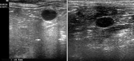 A sn: cisti ovarica, è presente il rinforzo posteriore. A dx: linfonodo linfomatoso, non è presente il rinforzo