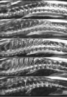 Scansioni longitudinali sagittali e parasagittali del rachide T2-pesate