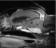 Scansione sagittale encefalo: Immagine postcontrasto (gadolinio) T1-pesata