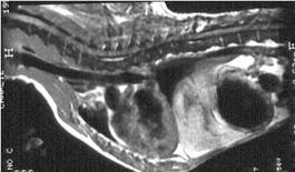 Torace scansione sagittale T1-pesata