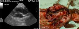 Aspetto ecografico e anatomo-patologico di un linfoma intestinale