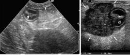 Ecografia del lobo pancreatico dx (frecce) normale e affetto da linfoma (d= duodeno)