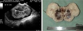 Aspetto ecografico e anatomo-patologico di linfoma renale in un gatto