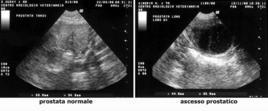Ecografia della prostata normale e affetta da ascesso