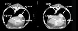 TC postcontrasto shunt porto-cava intraepatico