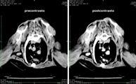 La TC evidenzia sempre i linfonodi sternali (freccia bianca) ed anche linfonodi extra-toracici (freccia nera)