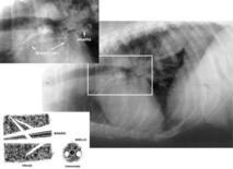Pattern bronchiale (broncopolmonite)