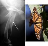 """Frattura scheggiosa del femore con scheggia """"a farfalla"""" (freccia)"""