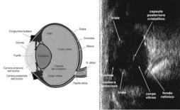 Anatomia ecografica dell'occhio