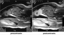 Aspetto RM T1-pesata, pre e postcontrasto, di un carcinoma nasale estesosi ai lobi olfattori