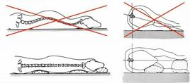 Posizionamento corretto per la proiezione LL del rachide