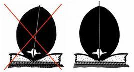 Posizionamento corretto per la proiezione VD del rachide