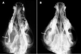Osteosarcoma della mandibola: A osteolisi; B osteoproliferazione (frecce)