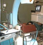 Intensificatore di brillanza in corso di mielografia