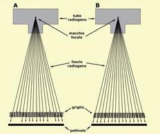 A) griglia parallela; B) griglia focalizzata