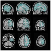 Applicazione del processo di segmentazione su una immagine medica.