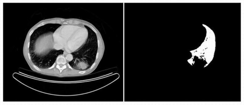 Segmentazione di una zona polmonare utilizzando il region growing.